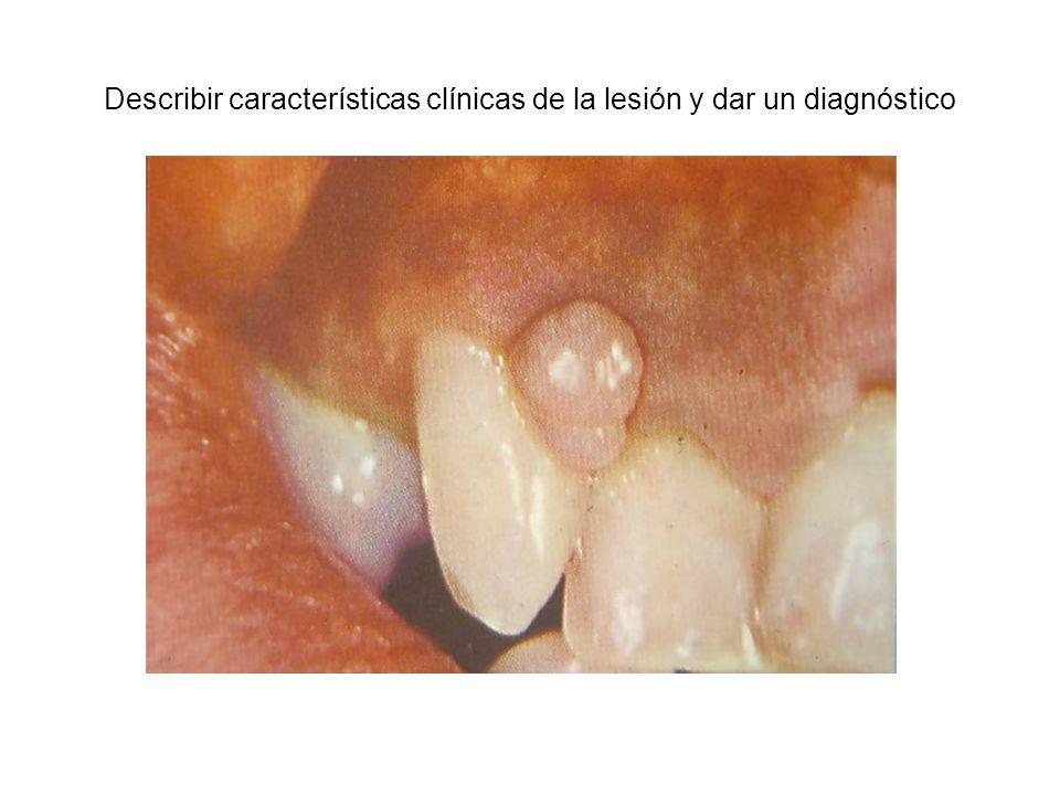 Describir características clínicas de la lesión y dar un diagnóstico
