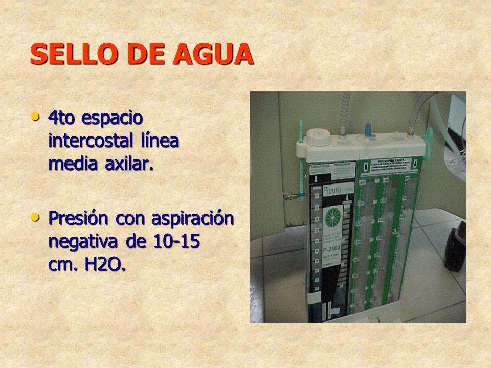 SELLO DE AGUA 4to espacio intercostal línea media axilar.