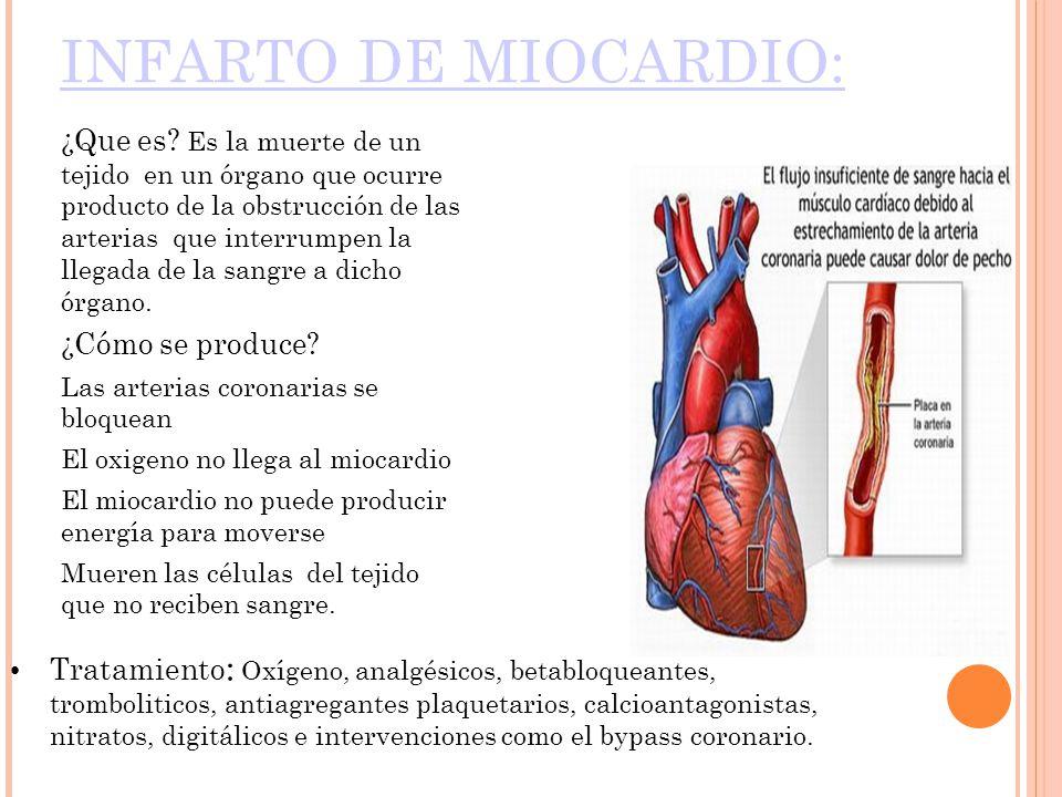 INFARTO DE MIOCARDIO:
