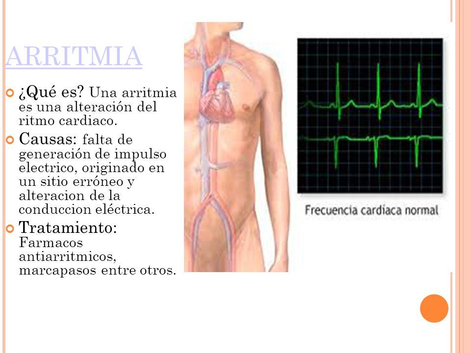 ARRITMIA ¿Qué es Una arritmia es una alteración del ritmo cardiaco.