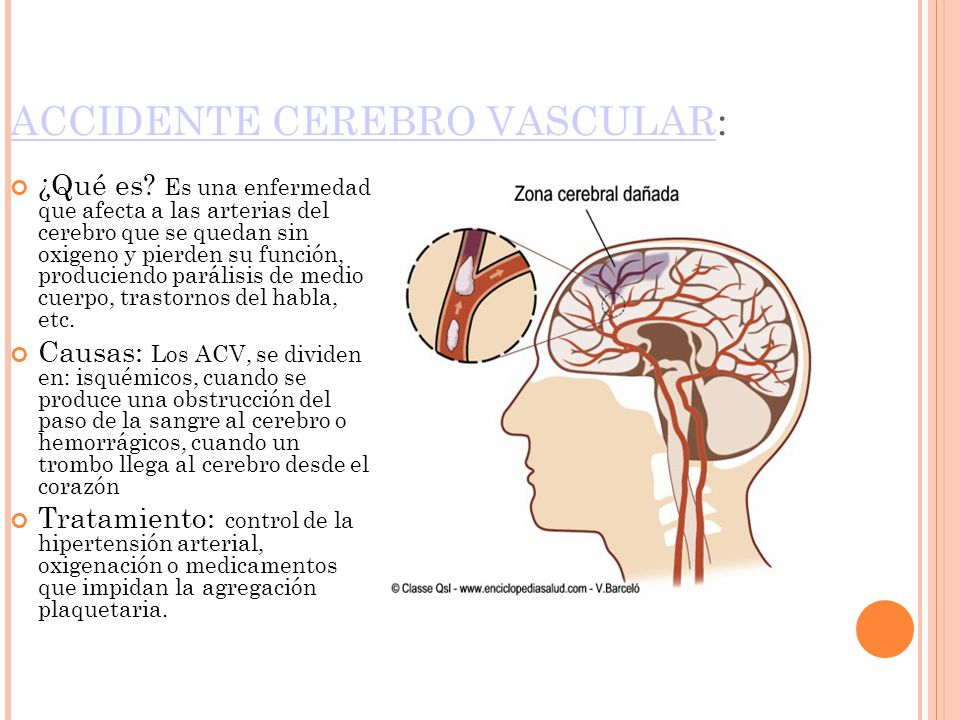 ACCIDENTE CEREBRO VASCULAR: