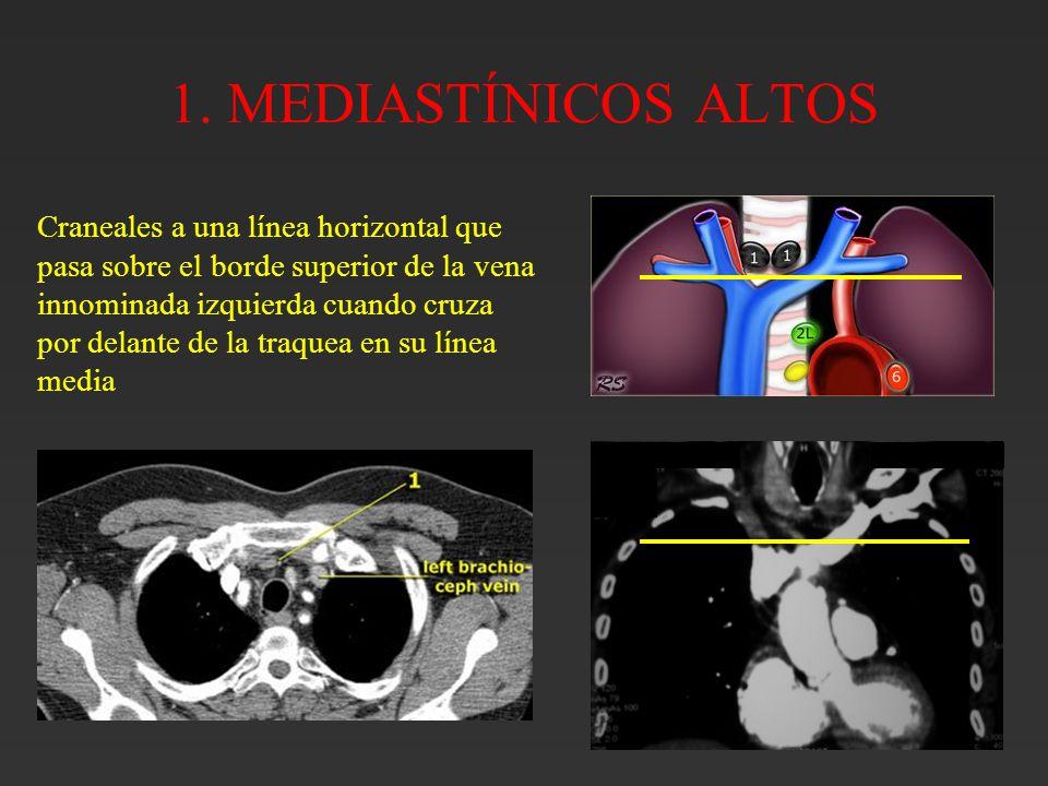 Bonito La Anatomía De La Vena Innominada Molde - Imágenes de ...
