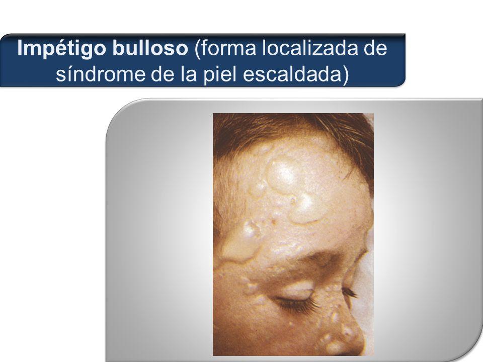 Impétigo bulloso (forma localizada de síndrome de la piel escaldada)
