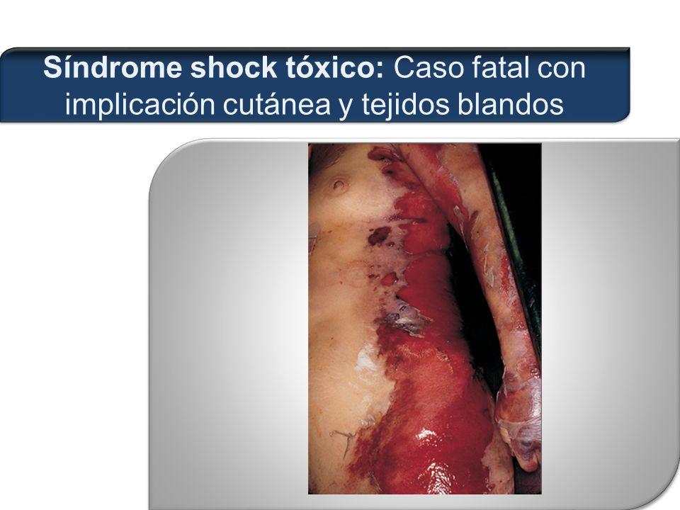 Síndrome shock tóxico: Caso fatal con implicación cutánea y tejidos blandos