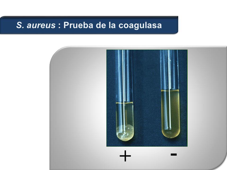 S. aureus : Prueba de la coagulasa