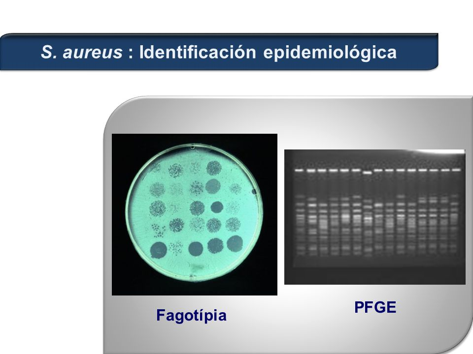 S. aureus : Identificación epidemiológica