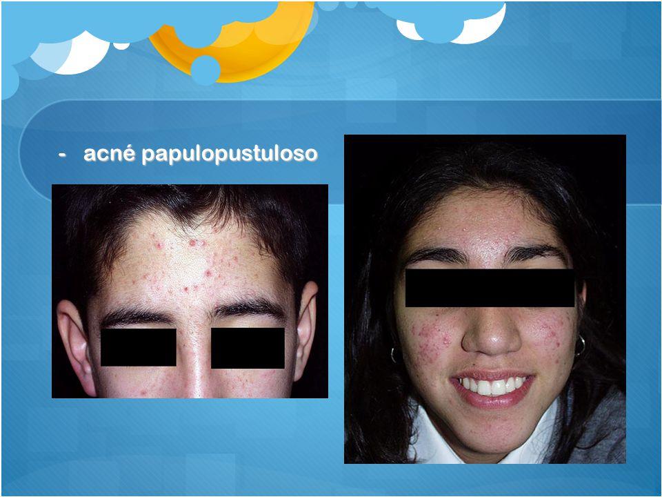 acné papulopustuloso