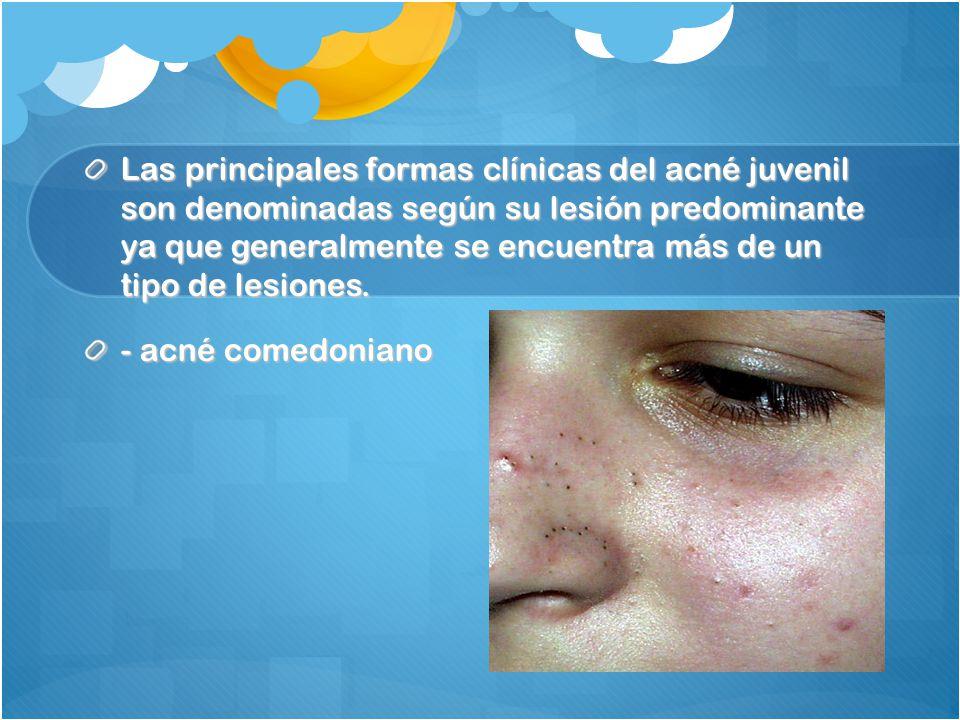 Las principales formas clínicas del acné juvenil son denominadas según su lesión predominante ya que generalmente se encuentra más de un tipo de lesiones.