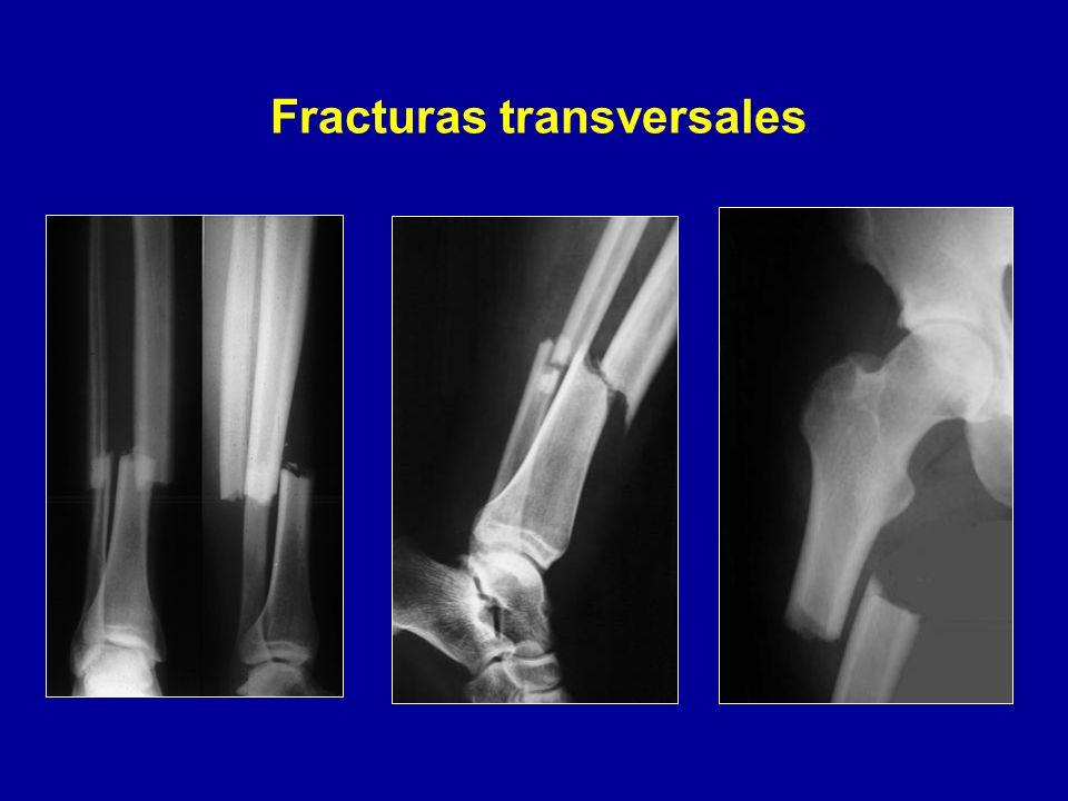 Atractivo Definición Fractura Transversal Regalo - Anatomía de Las ...