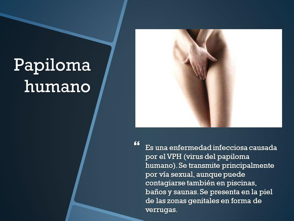 Papiloma humano