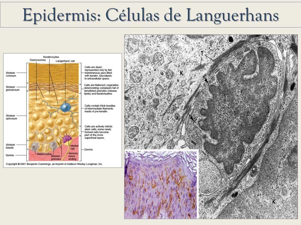 Epidermis: Células de Languerhans