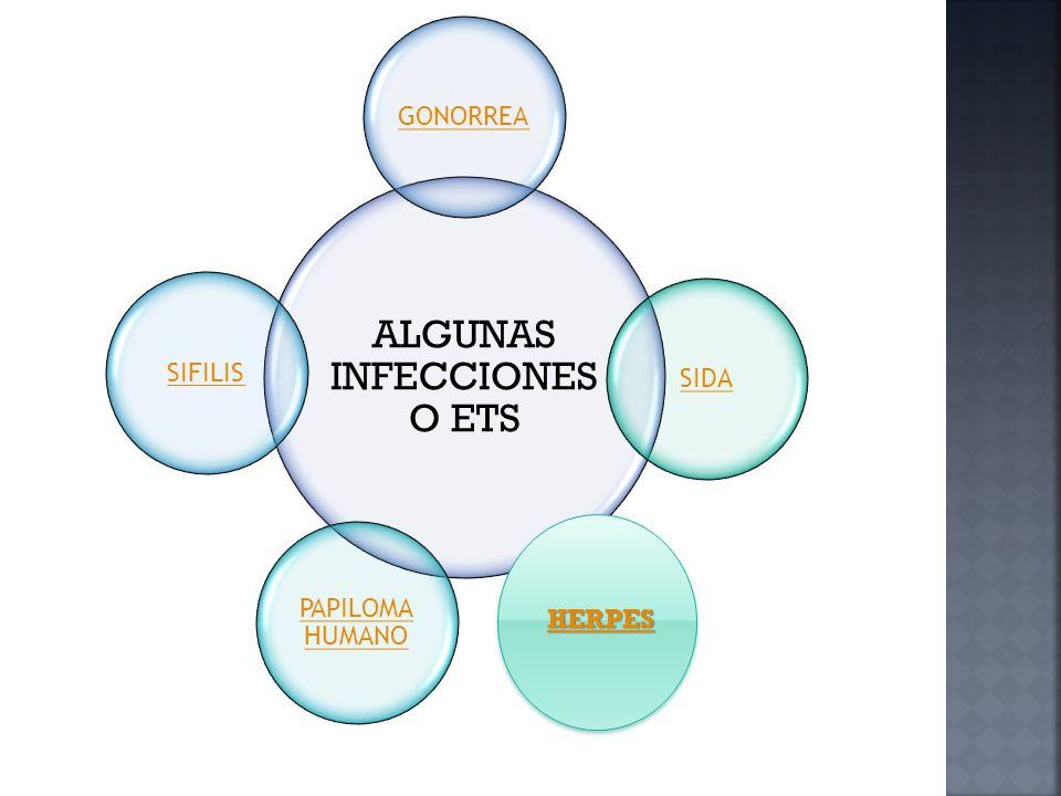 ALGUNAS INFECCIONES O ETS