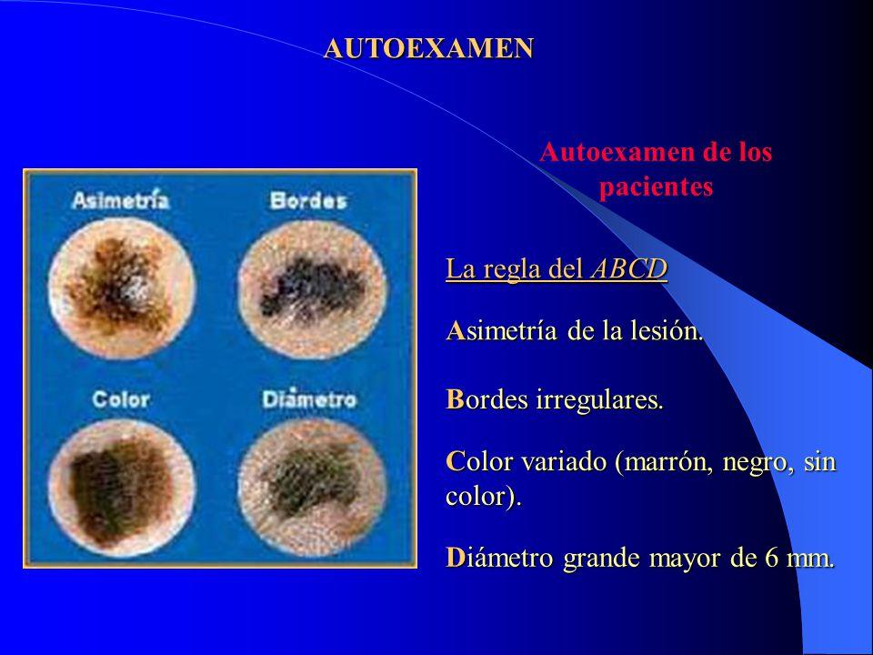 AUTOEXAMEN Autoexamen de los. pacientes. La regla del ABCD. Asimetría de la lesión. Bordes irregulares.