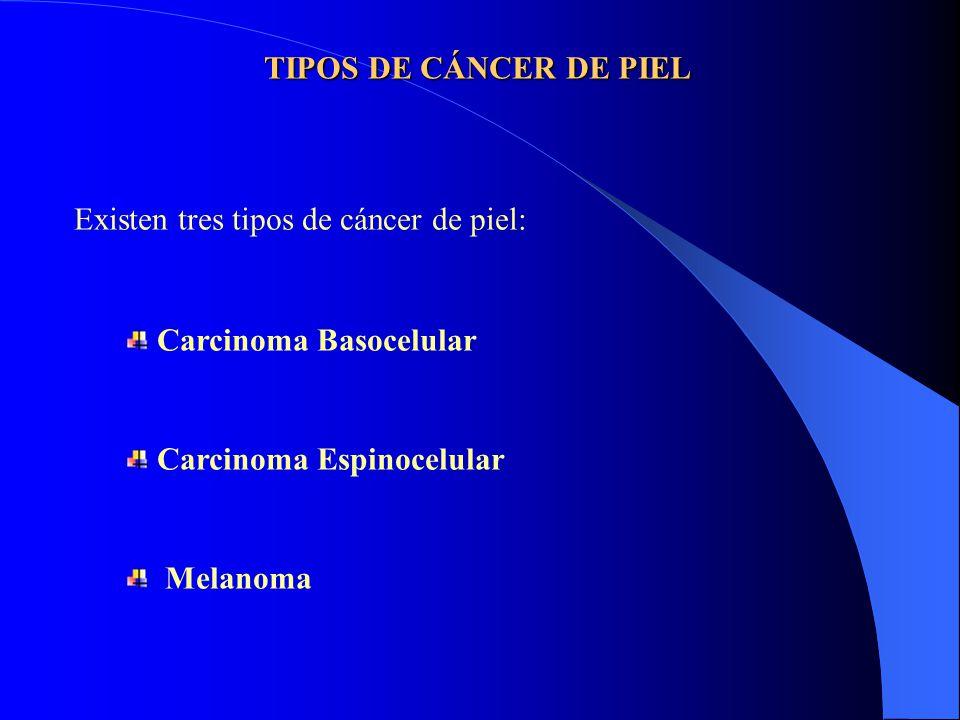 TIPOS DE CÁNCER DE PIEL Existen tres tipos de cáncer de piel: Carcinoma Basocelular. Carcinoma Espinocelular.