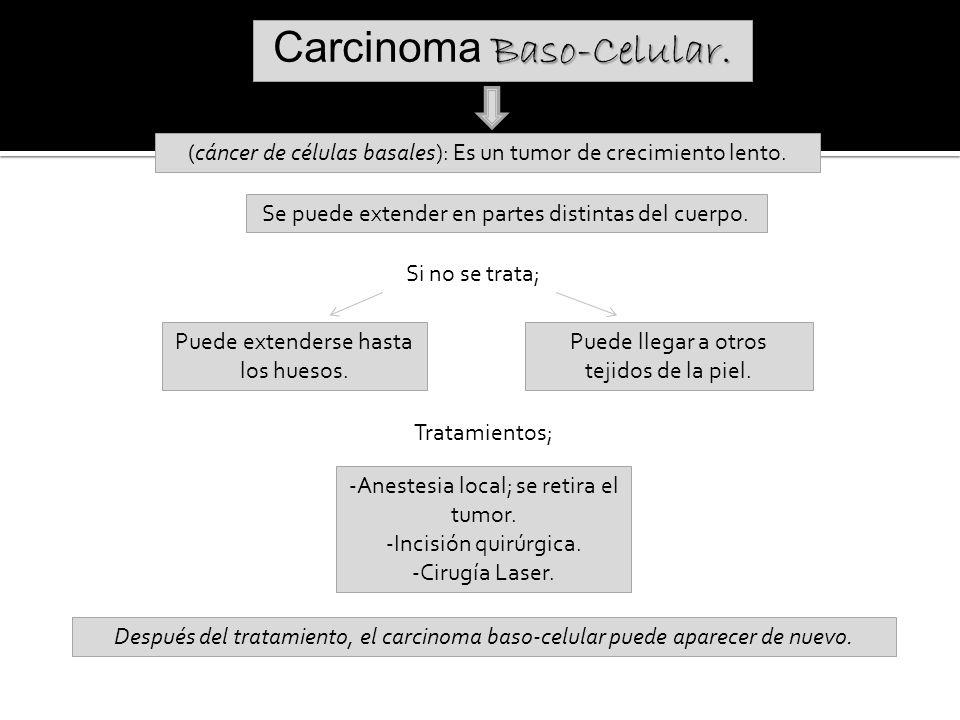 Carcinoma Baso-Celular.