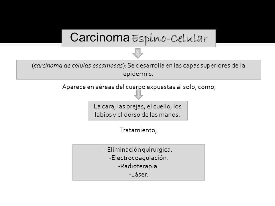 Carcinoma Espino-Celular