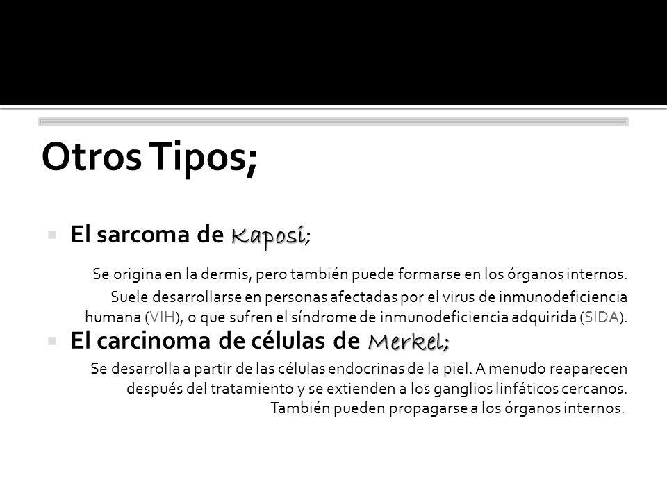 Otros Tipos; El sarcoma de Kaposi;