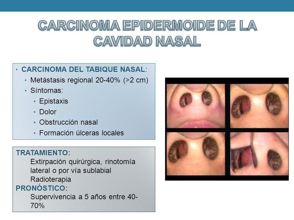 Tumores malignos de nariz y senos paranasales ppt video for Pared lateral de la cavidad nasal