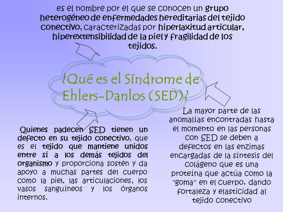 Síndrome de Ehlers-Danlos - ppt video online descargar