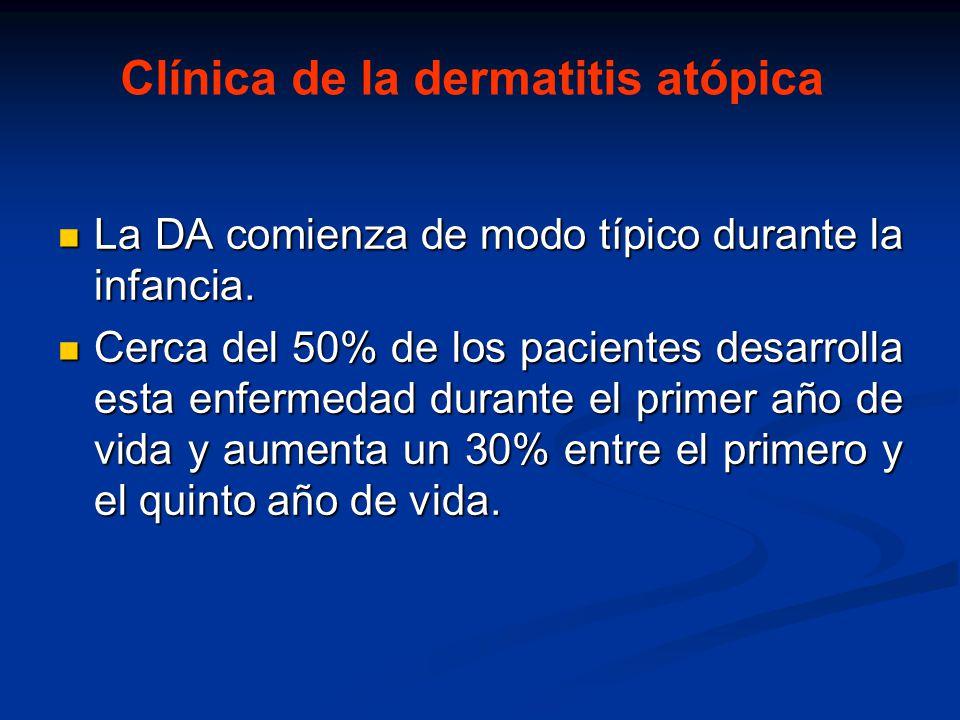 Clínica de la dermatitis atópica