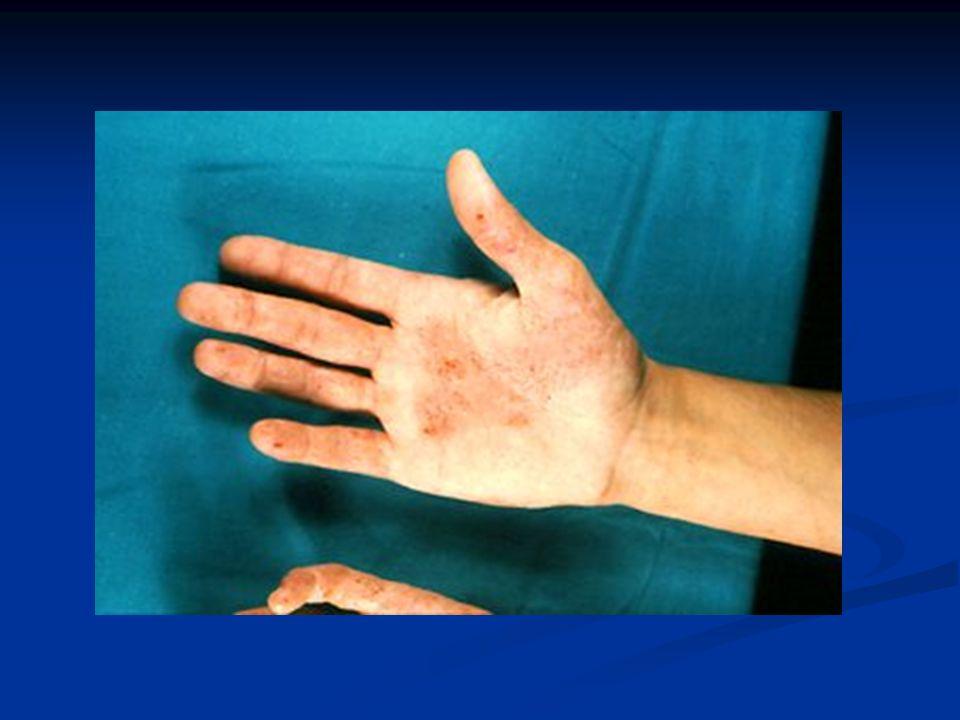 La dermatitis persistente en manos puede ser el único signo de una DA.