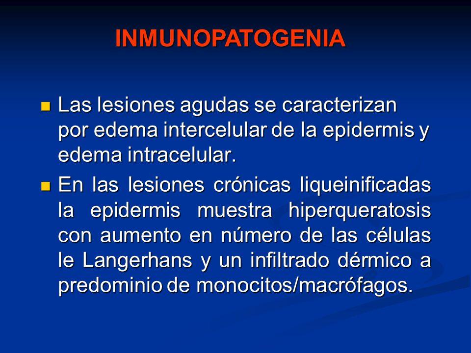 INMUNOPATOGENIA Las lesiones agudas se caracterizan por edema intercelular de la epidermis y edema intracelular.