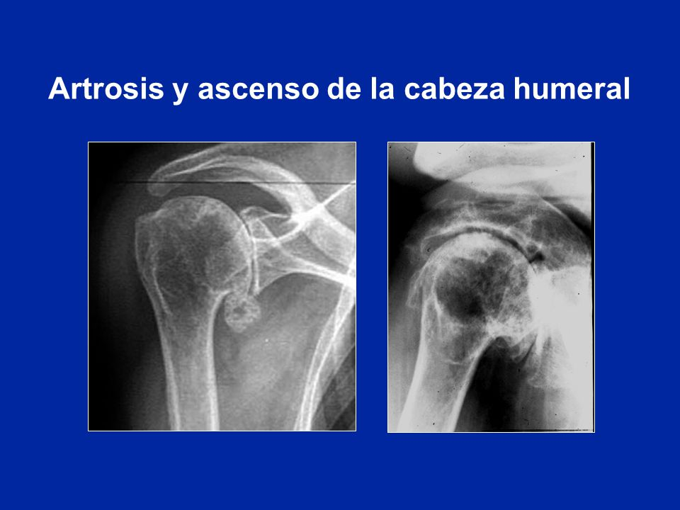 Lujo Hombro Cabeza Humeral Molde - Anatomía y Fisiología del Cuerpo ...