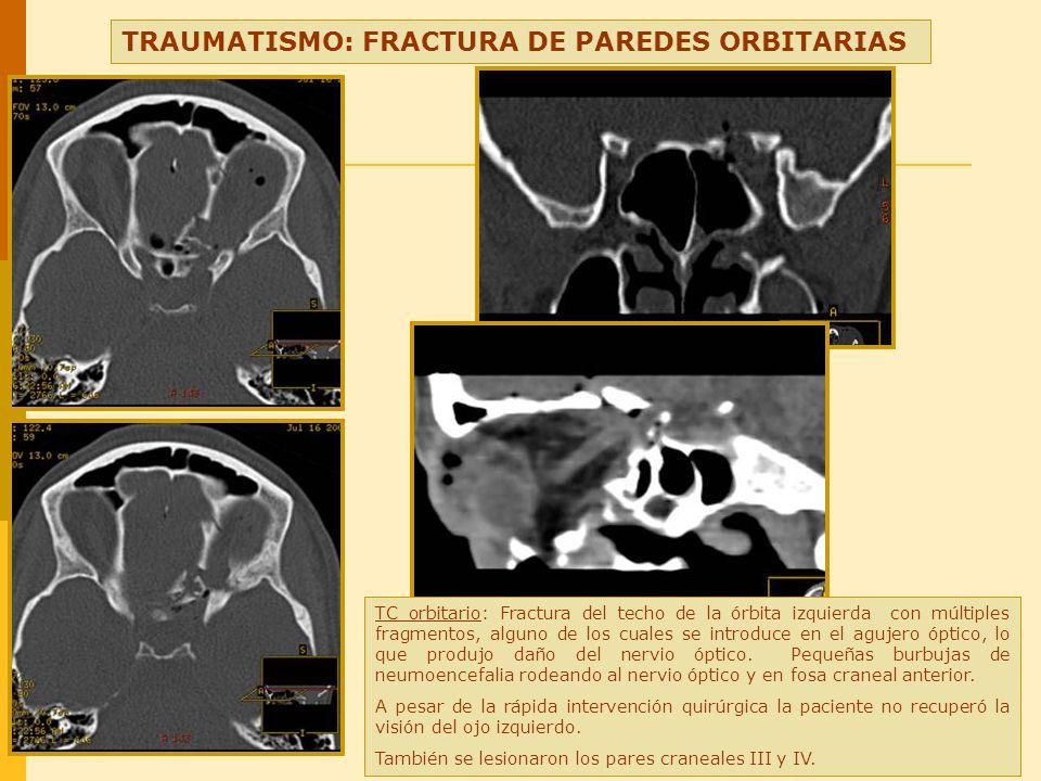 5 neuritis ptica el estudio diagn stico de la p rdida for Paredes orbitarias