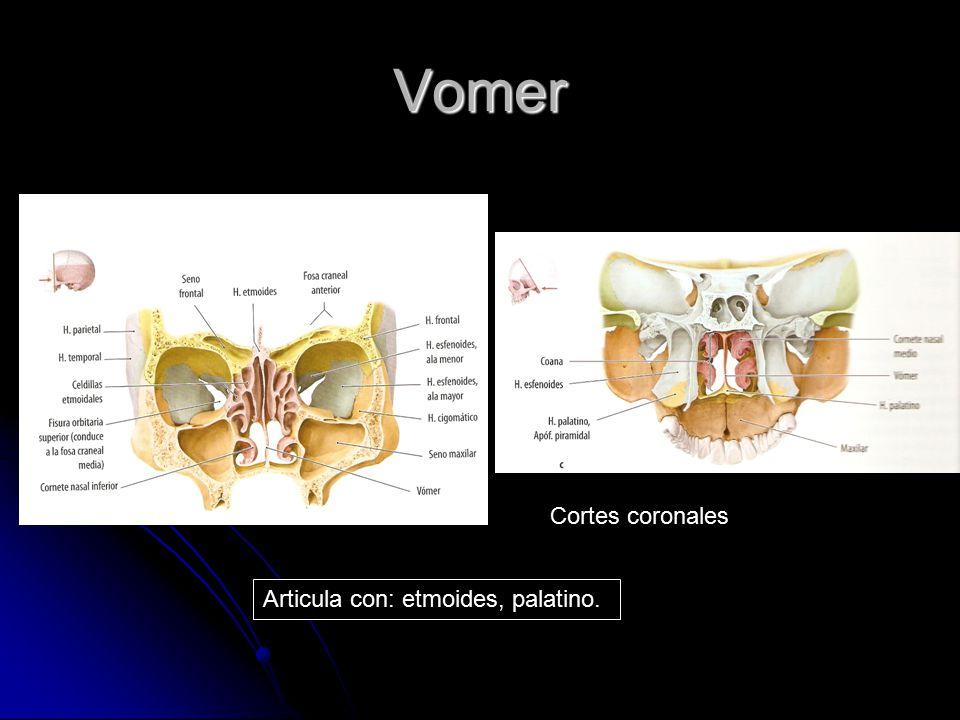 Vomer Cortes coronales Articula con: etmoides, palatino.