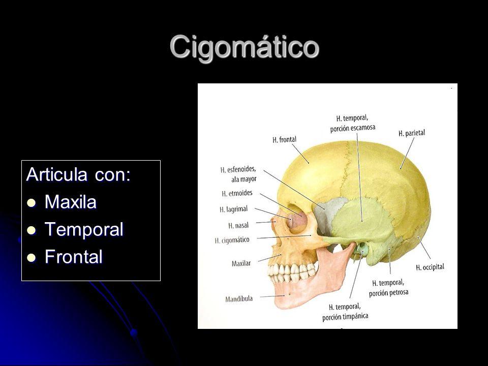 Cigomático Articula con: Maxila Temporal Frontal