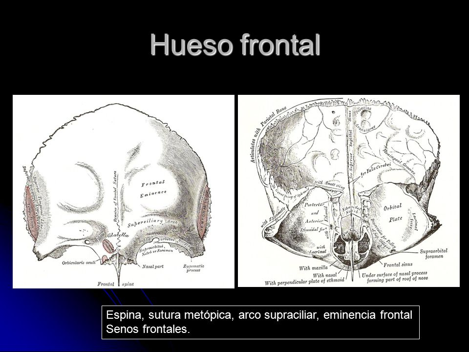 Hueso frontal Espina, sutura metópica, arco supraciliar, eminencia frontal Senos frontales.