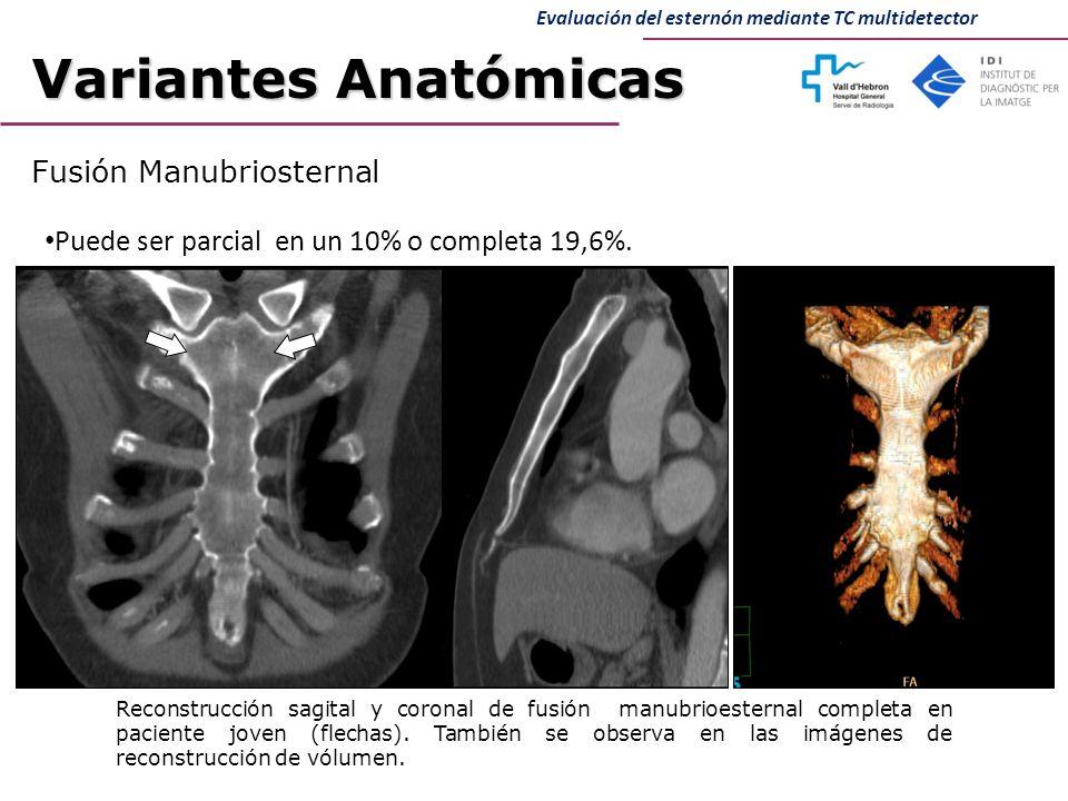 Excepcional Apófisis Xifoides Anatomía Festooning - Imágenes de ...
