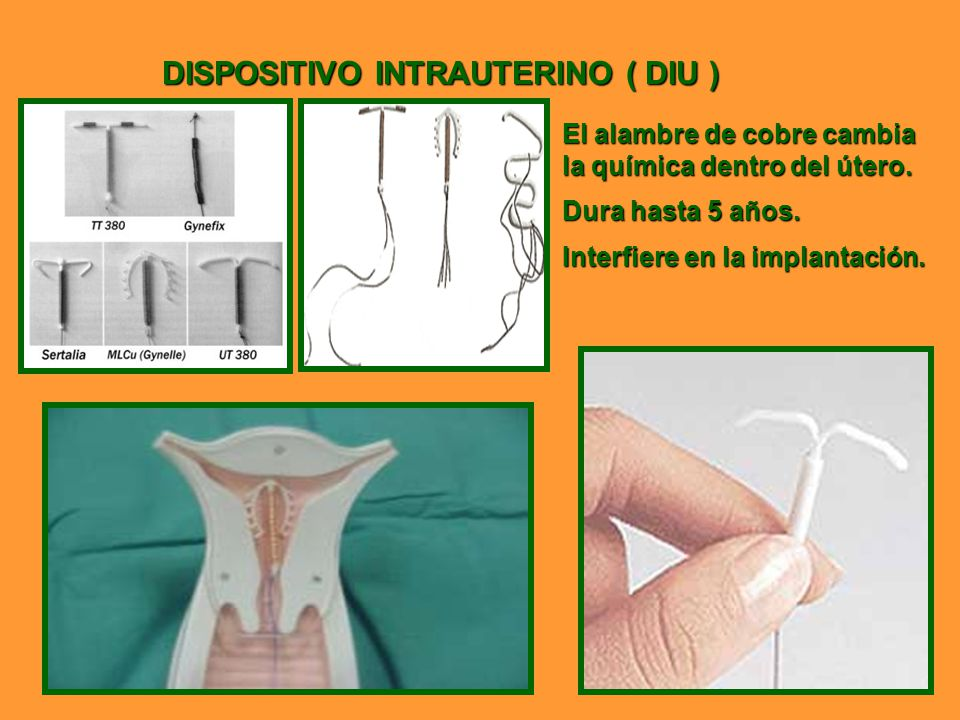 DISPOSITIVO INTRAUTERINO ( DIU )