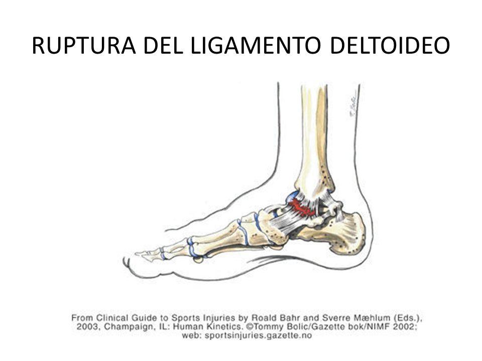 Lujo Anatomía Ligamento Deltoideo Friso - Imágenes de Anatomía ...