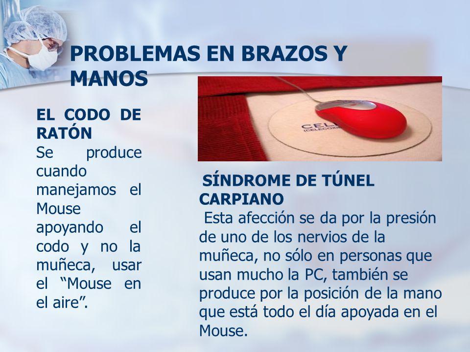 PROBLEMAS EN BRAZOS Y MANOS