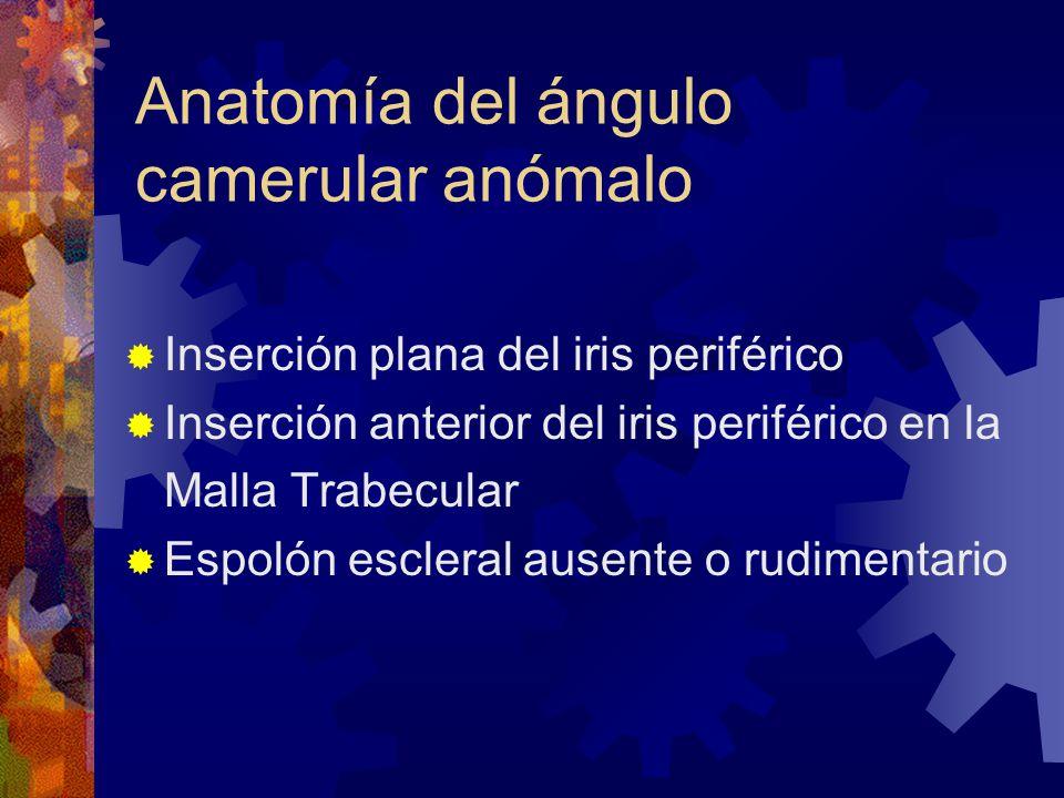 Atractivo Anatomía Espolón Escleral Friso - Anatomía de Las ...