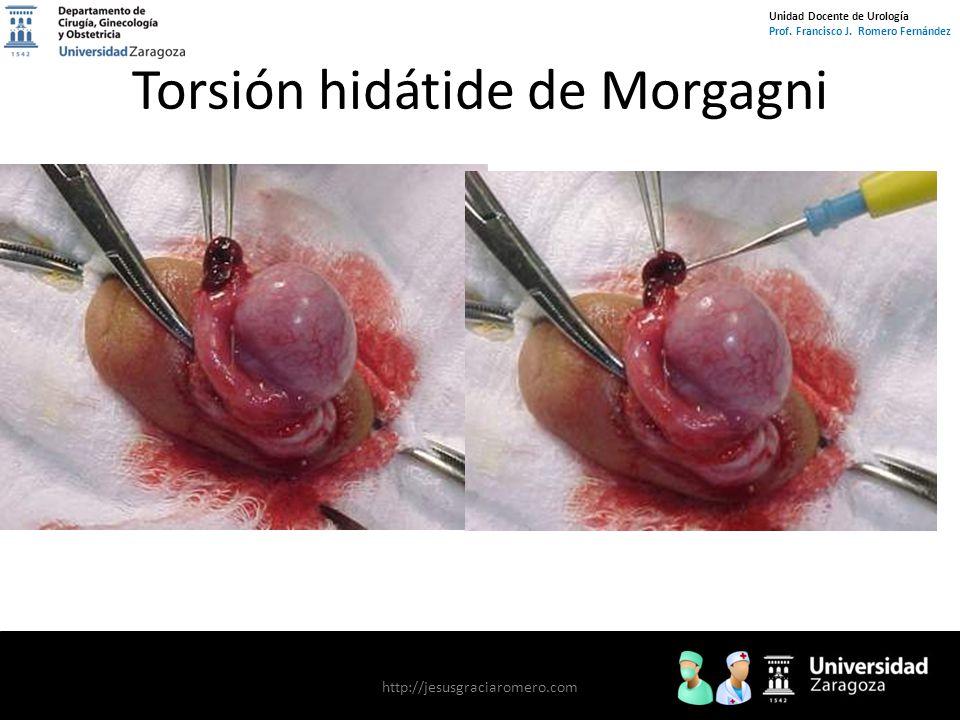 Torsión hidátide de Morgagni