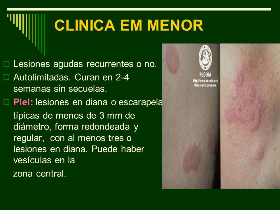 CLINICA EM MENOR Lesiones agudas recurrentes o no.