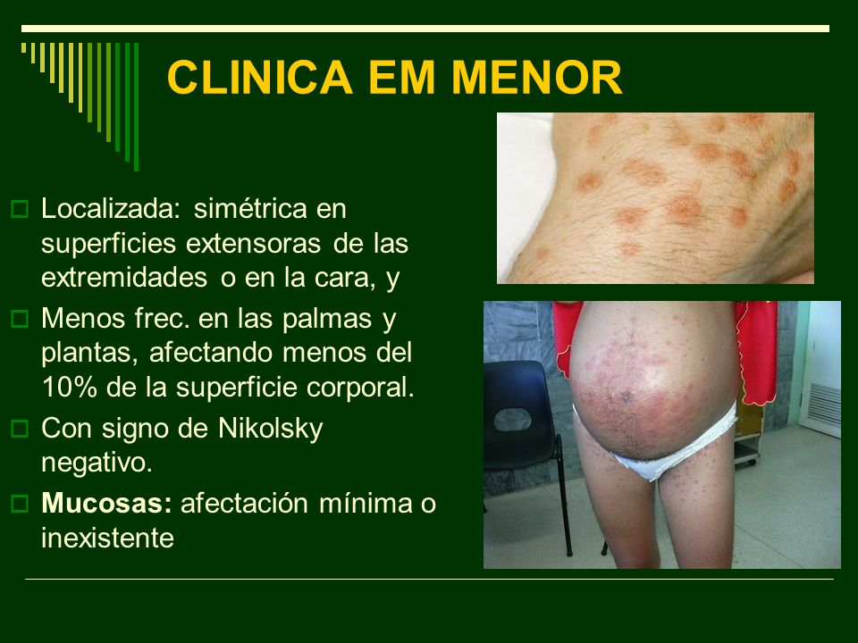 CLINICA EM MENOR Localizada: simétrica en superficies extensoras de las extremidades o en la cara, y.