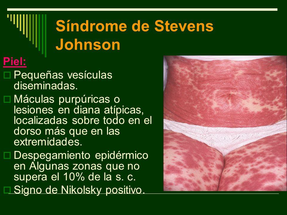 Síndrome de Stevens Johnson