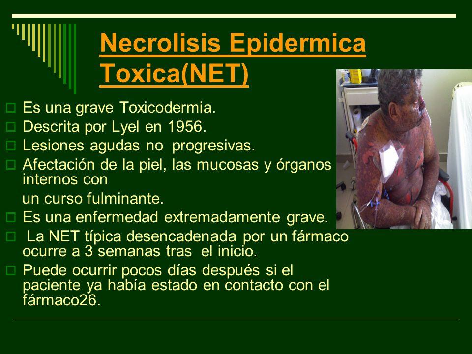 Necrolisis Epidermica Toxica(NET)