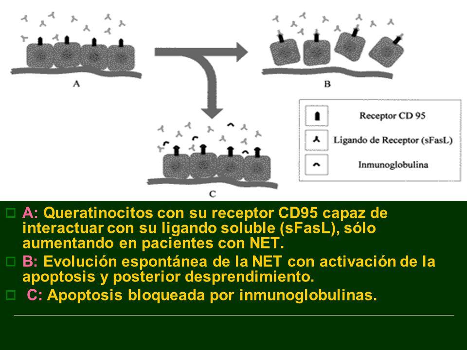 A: Queratinocitos con su receptor CD95 capaz de interactuar con su ligando soluble (sFasL), sólo aumentando en pacientes con NET.