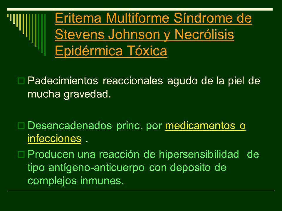 Eritema Multiforme Síndrome de Stevens Johnson y Necrólisis Epidérmica Tóxica