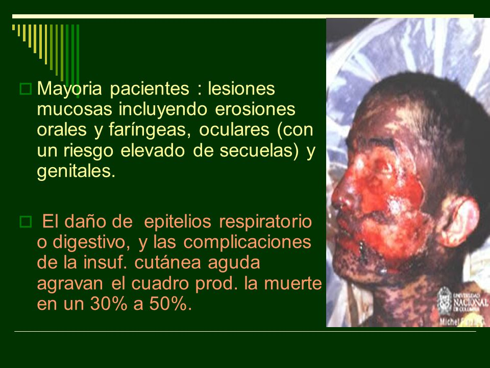 Mayoria pacientes : lesiones mucosas incluyendo erosiones orales y faríngeas, oculares (con un riesgo elevado de secuelas) y genitales.