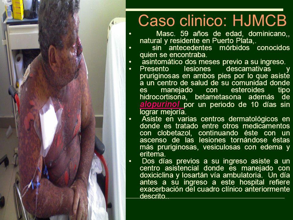 Caso clinico: HJMCB Masc. 59 años de edad, dominicano,, natural y residente en Puerto Plata,.