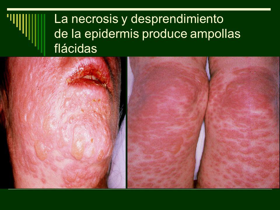 La necrosis y desprendimiento de la epidermis produce ampollas flácidas