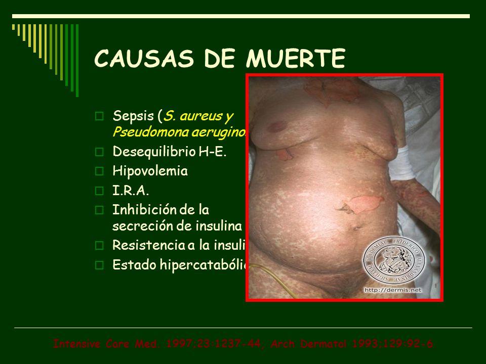 Intensive Care Med. 1997;23:1237-44, Arch Dermatol 1993;129:92-6