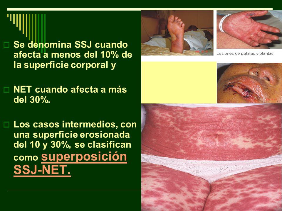 Se denomina SSJ cuando afecta a menos del 10% de la superficie corporal y