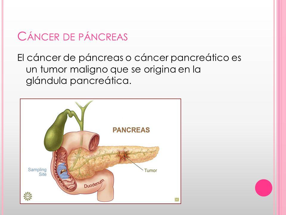 Cáncer de páncreas El cáncer de páncreas o cáncer pancreático es un tumor maligno que se origina en la glándula pancreática.