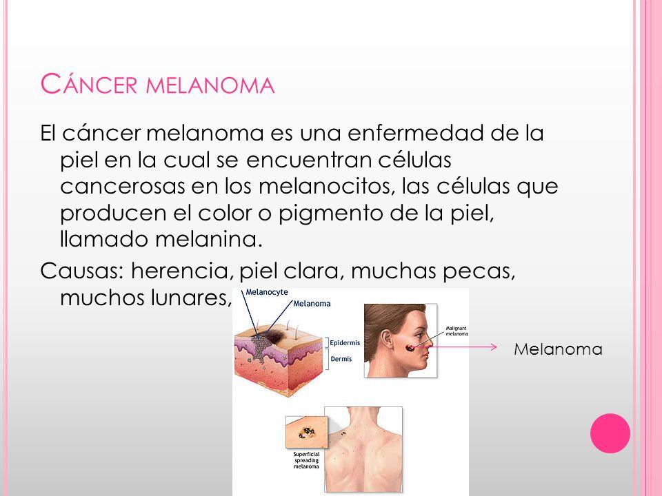 Cáncer melanoma